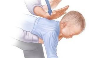 В дыхательных путях инородное тело: что делать?