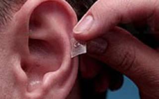 Иглоукалывание в ухо для чего
