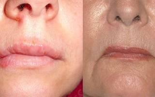 Чем герпес отличается от простуды на губах