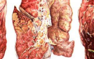 Как долго лечится кашель