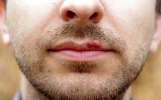 Что помогает от простуды на губах