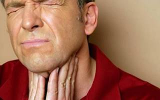 Лечение грибка в горле у взрослых