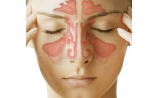 Лечение гайморита после прокола