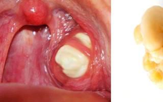 Тонзиллит пробки в горле