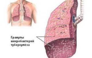 Туберкулез легких — причины, симптомы, диагностика и лечение