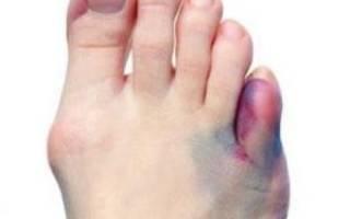Сломал мизинец на ноге сколько заживает — Все про суставы