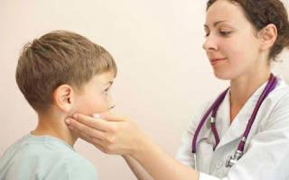 Простуда воспалился лимфоузел на шее: как лечить