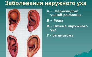 Экзема в ушах как лечить