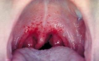 Симптомы тонзиллита у взрослых
