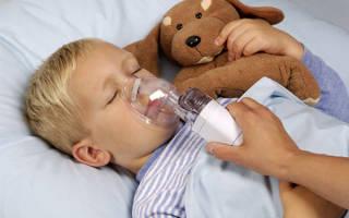 Острый стенозирующий ларинготрахеит у детей