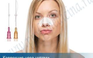 Коррекция кончика носа нитями