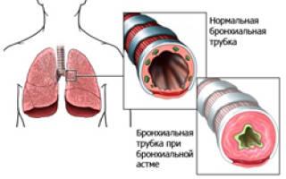 Ведущие симптомы бронхиальной астмы