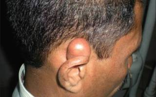 Атерома за ухом, на мочке и ушной раковине: лечение и фото