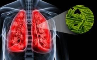 Палочка Коха — возбудитель туберкулеза. Фото