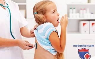 Воспаление легких — симптомы у детей: диагностика пневмонии