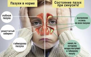Гормональные капли в нос при гайморите
