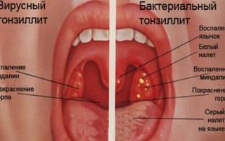 Вирусная ангина чем лечить у взрослого