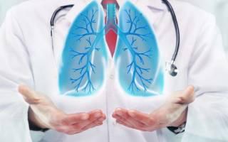 Двухсторонняя сливная пневмония