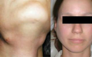 Воспаление подчелюстной слюнной железы — симптомы и лечение