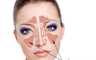 Если болят пазухи носа – рекомендации для пациентов