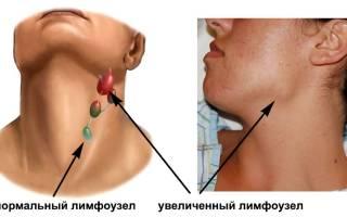 Увеличение лимфоузлов на шее — причины и лечение
