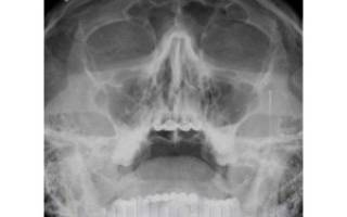 Рентген пазух носа для военкомата