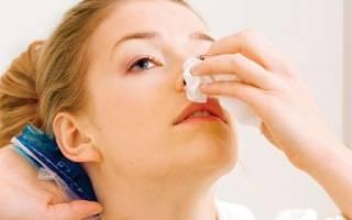 Кровь при насморке из носа: причины почему кровит нос