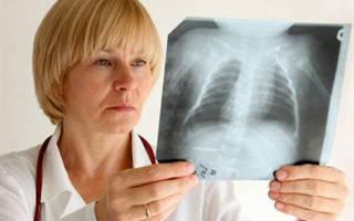 Туберкулез у детей — первые признаки и диагностика
