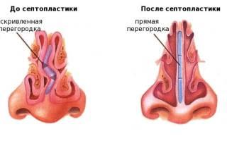 Исправление искривленной перегородки носа
