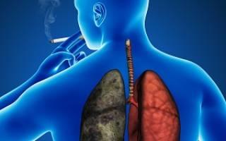 Хобала болезнь легких