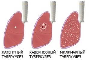 Туберкулез легких симптомы у взрослых закрытая форма