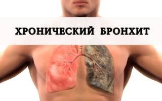 Хронический бронхит по МКБ-10: классификация заболевания