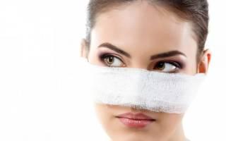 Как выравнивают перегородку носа