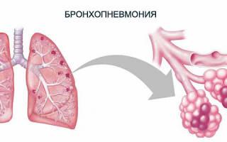Бронхопневмония у взрослых симптомы и лечение