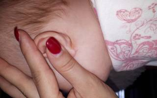 У новорожденного за ушами корочки