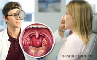 Налет на горле без температуры у взрослого