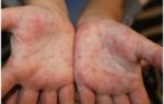Противовирусные препараты при энтеровирусной инфекции для детей