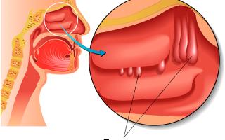 Как определить полипы в носу