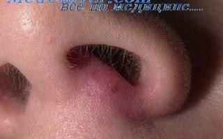 Абсцесс, фурункул и карбункул носа