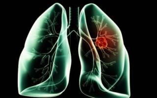 Лимфоузлы в легких: возможные причины увеличения и лечение