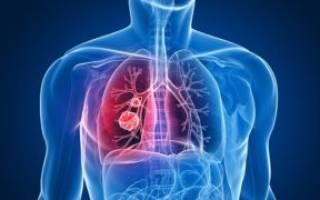 Правосторонняя пневмония у взрослого симптомы
