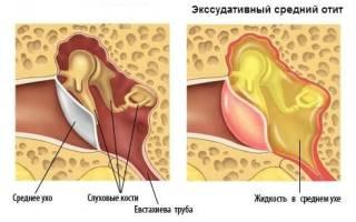 Экссудативный средний отит у детей лечение