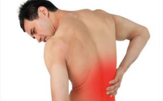 Боль в спине при кашле и чихании