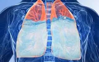Синдром отека легких