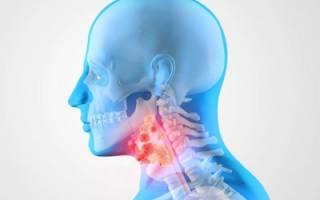 Рентгенография гортани – что может показать?