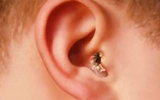 Грибок в ушах — профилактика, лечение