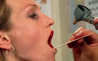 Как промывать горло в домашних условиях