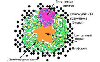 Лечение инфильтративного туберкулеза легких