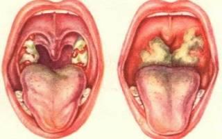 Стафилококковый фарингит симптомы