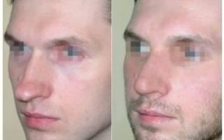 Противопоказания к ринопластике носа